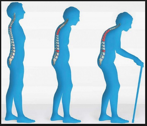 symptoms-and-tip-to-prevent- Osteoporosis-in-hindi