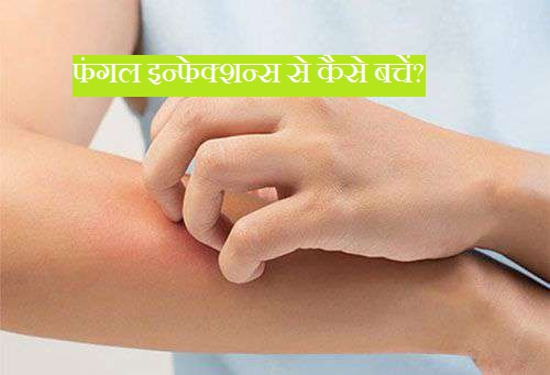 fungal-infection-treatment-prevention-in-hindi