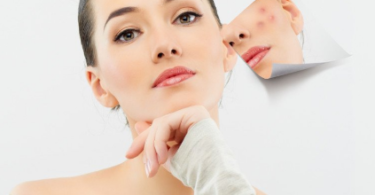 skincare-tips-acne-marks-in-hindi