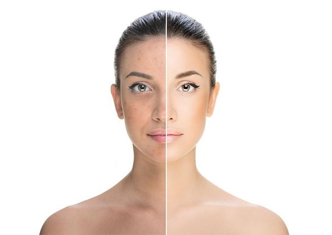 -hyperpigmentation-treatment-in-hindi