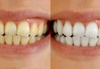 teeth-whitening-tips-at-home-in-hindi